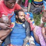 Diantara DIAM ATAU BERTINDAK Menghadapi Masalah Hak Asasi Manusia di Papua